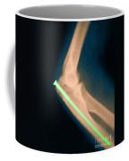 Broken Arm With Metal Pin, X-ray Coffee Mug