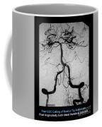 Cerebral Angiogram Coffee Mug