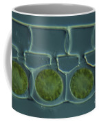 Conjugation In Spirogyra Algae Lm Coffee Mug