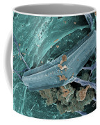 Diatom With Thermophilic Bacteria Coffee Mug by Ted Kinsman