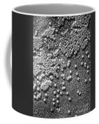Hepatitis Virus Coffee Mug