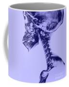 Human Skull And Spine Coffee Mug