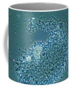 Lactobacillus Sp. Bacteria, Lm Coffee Mug