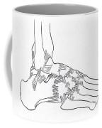 Major Ligaments Of The Foot Coffee Mug