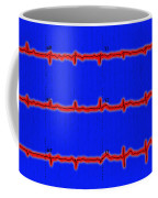 Normal Ecg Coffee Mug