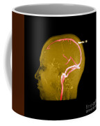 Normal Venous Anatomy Coffee Mug