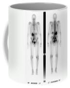 Nuclear Medicine Coffee Mug