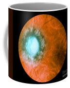Retina Infected By Syphilis Coffee Mug