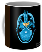 Sinusitis Coffee Mug
