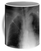 X-ray Of Implanted Defibulator Coffee Mug