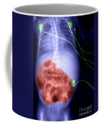 X-ray Of Swollen Abdomen Coffee Mug
