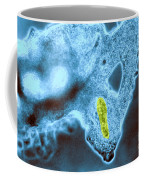 Light Micrograph Of Amoeba Catching Coffee Mug