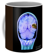 Mri Of Brain Avm Coffee Mug