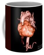 3d Cta Of Heart Coffee Mug
