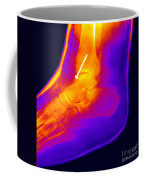 Broken Ankle Coffee Mug