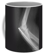 Broken Arm With Metal Pin, X-ray Coffee Mug by Science Source