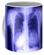 Chest X-ray Of Female Coffee Mug