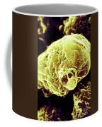 Hiv-1 Infected T4 Lymphocyte Sem Coffee Mug
