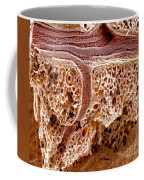 Mouse Lung, Sem Coffee Mug by Science Source