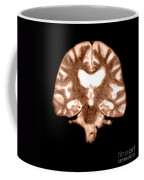 Mri Of Brain With Alzheimers Disease Coffee Mug