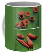 Normal And Sickle Red Blood Cells Coffee Mug