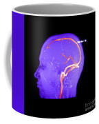 Normal Venous Anatomy Coffee Mug