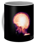 Pagets Disease Coffee Mug