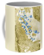 Rubella Virus. Tem Coffee Mug