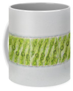 Spirogyra Sp. Algae Lm Coffee Mug