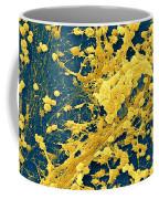 Staphylococcus Biofilm Coffee Mug