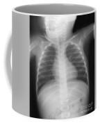 Swallowed Nail Coffee Mug