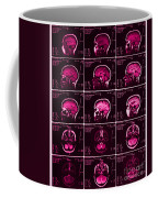 Mri Of Normal Brain Coffee Mug