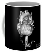 3d Cta Of Heart Coffee Mug by Medical Body Scans