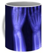 Broken Wrist Coffee Mug by Ted Kinsman