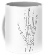 Hand And Wrist Bones Coffee Mug