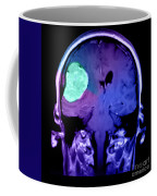 Right Sided Meningioma Coffee Mug