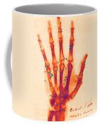 X-ray Of Gunshot In The Hand Coffee Mug