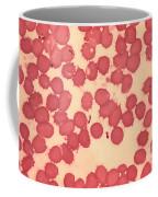 Yersinia Pestis Coffee Mug