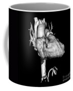 3d Ct Reconstruction Of Heart Coffee Mug