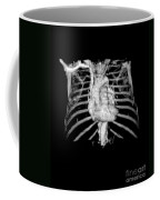 3d Cta Of Heart And Chest Coffee Mug by Medical Body Scans