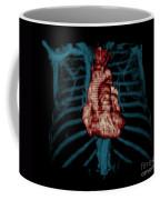 3d Ct Reconstruction Of Heart Coffee Mug