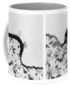 Aids Virus Coffee Mug