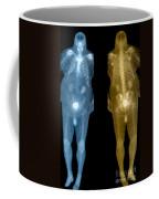 Bone Scan Coffee Mug