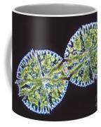Micrasterias Denticulata Coffee Mug