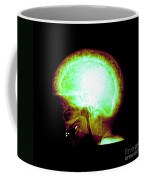 Pagets Disease Coffee Mug