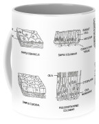 Types Of Epithelial Cells Coffee Mug