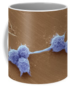 Water Biofilm With H. Vermiformis Cysts Coffee Mug