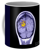 Mri Of Arterial Venous Malformation Coffee Mug