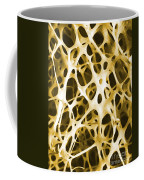 Sem Of Human Shin Bone Coffee Mug by Science Source