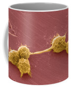 Water Biofilm With H. Vermiformis Cysts Coffee Mug by Science Source